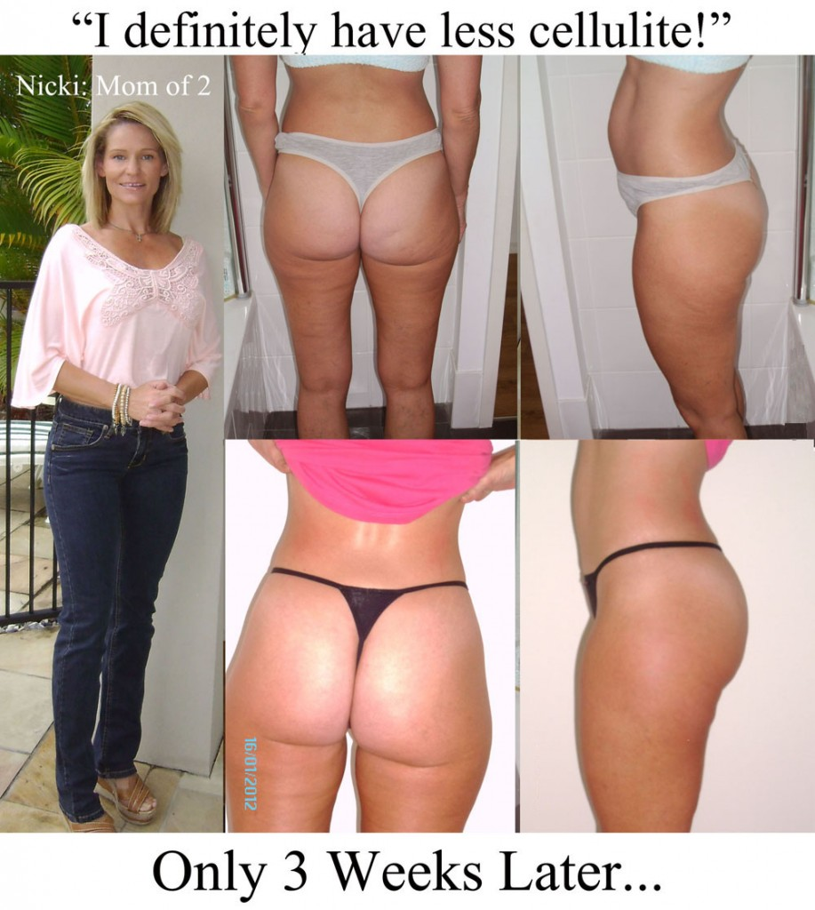 Nicki's Cellulite Reduction Before and After Photos After Only 3 Weeks
