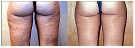 Before And After Cellulite Truth About Cellulite