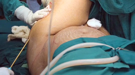 Liposuction Makes Cellulite Worse