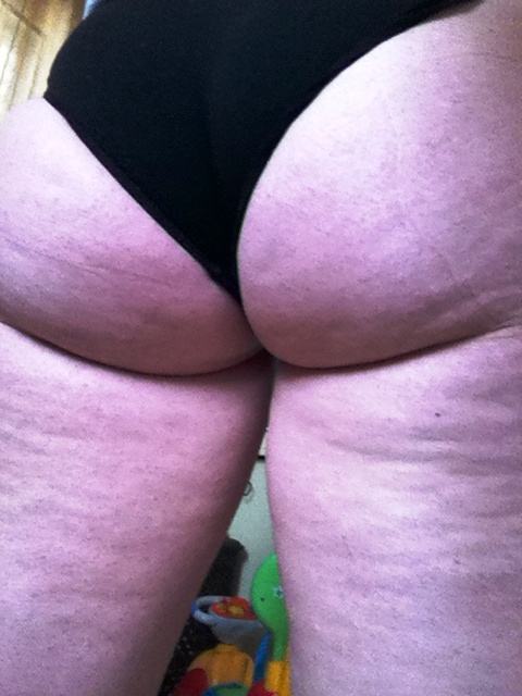 Italian Mom of 2 Shares Cellulite Removal Photos
